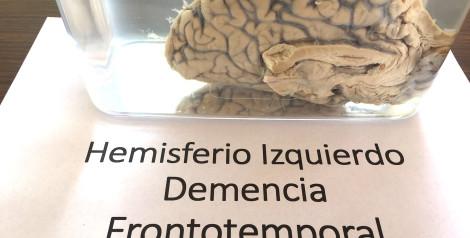 Sólo 5% de los casos de Alzheimer se asocian con un factor genético, afirma especialista durante el Día del Cerebro UVM